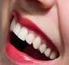 A woman with a healthy smile because she takes care of her teeth